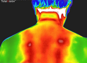 Muskelspændinger på ryg