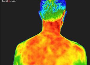 Inflammation på hele ryggen